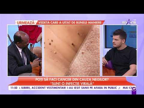 Papilloma la un copil: simptome și tratament