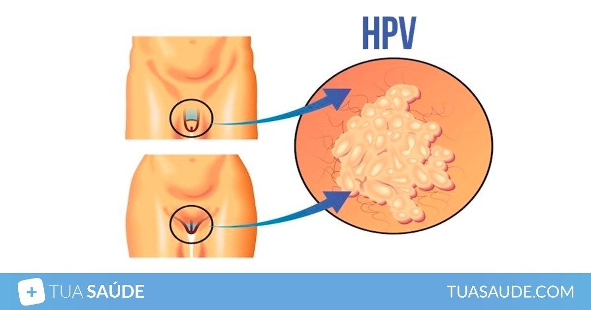 papiloma virus tratamento)