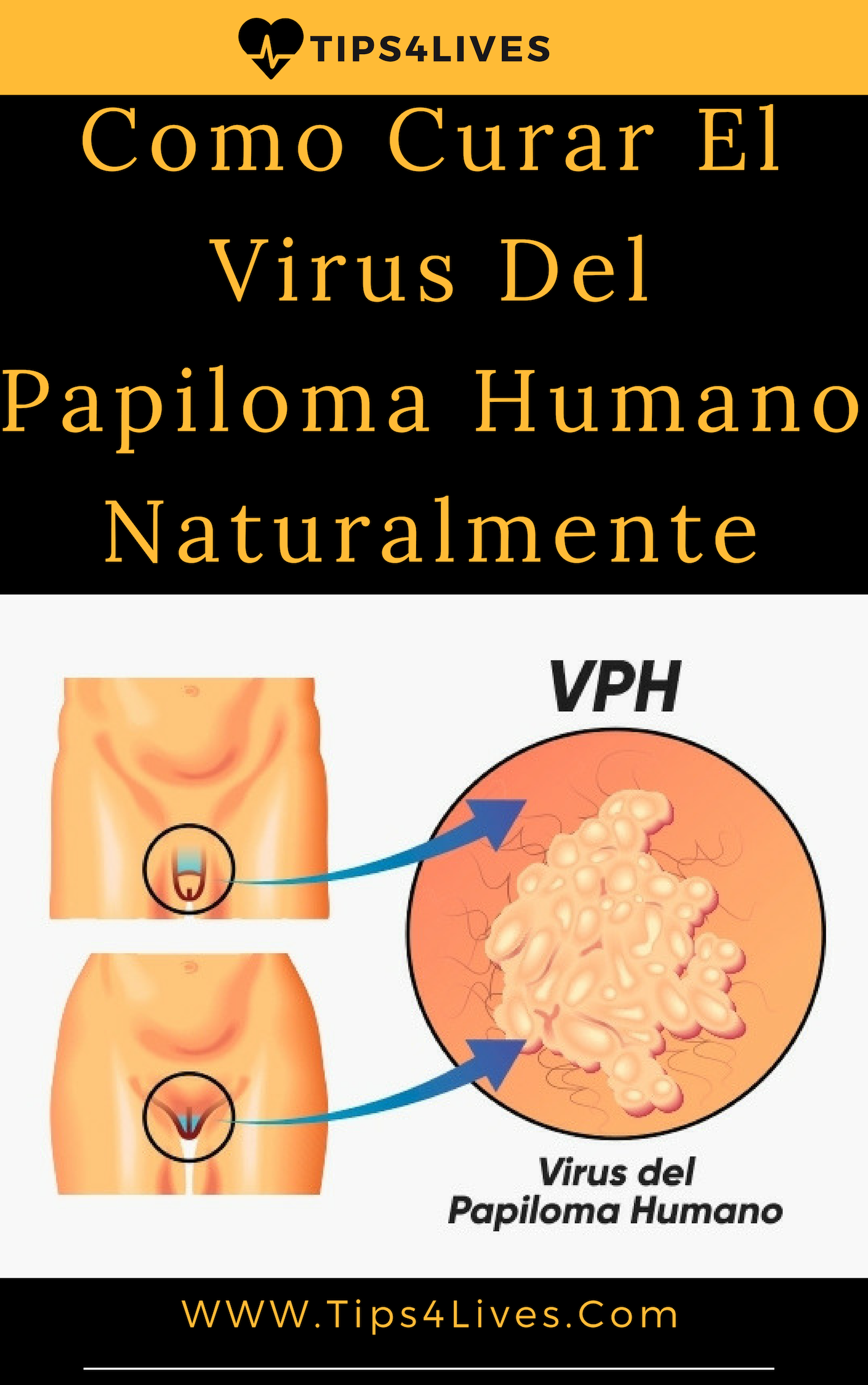 papiloma virus tratamiento como eliminar papiloma en la boca