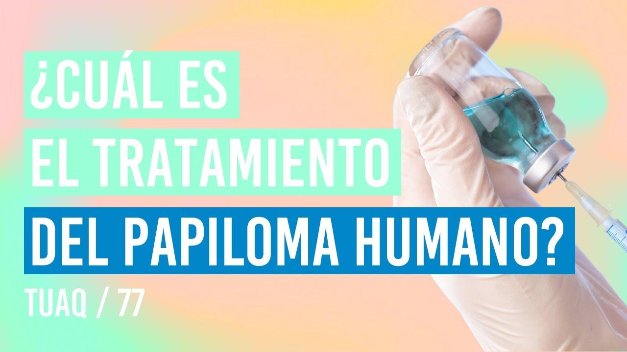 papiloma virus tratamiento pastile roata si viermii din pin
