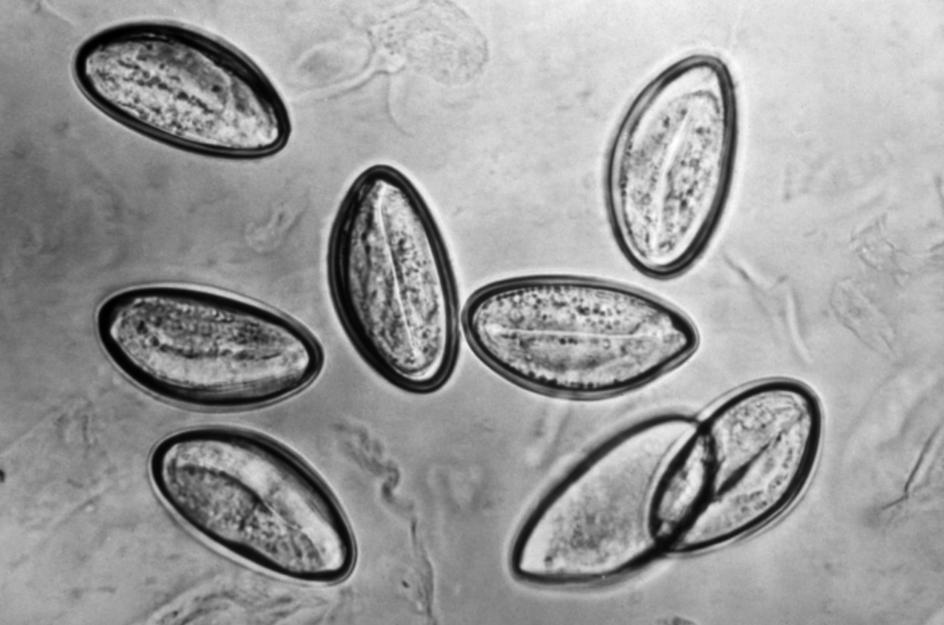 parasitos huevos de oxiuros