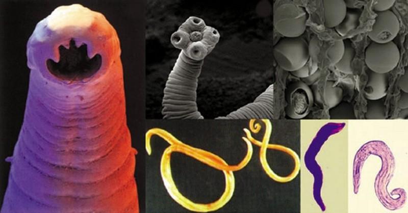 parazit v jatrech