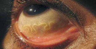paraziti cilveka organisma herpes da papilloma virus