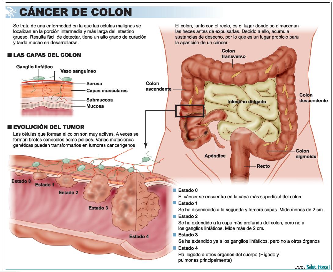 que es cancer de colon