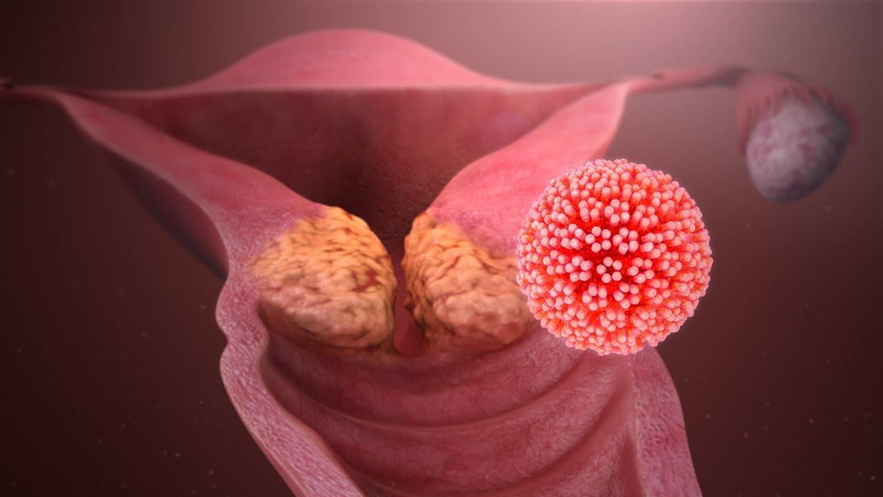 Papiloma virus en mujeres