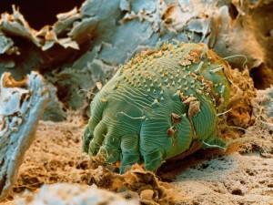 reteta pentru eliminarea parazitilor din corpul uman