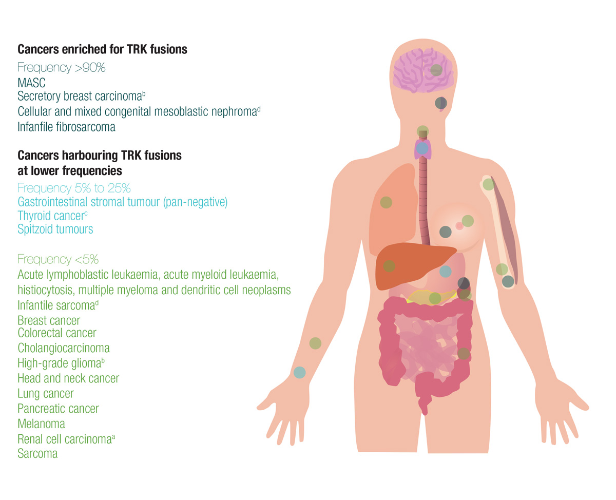 sarcoma cancer of the lungs