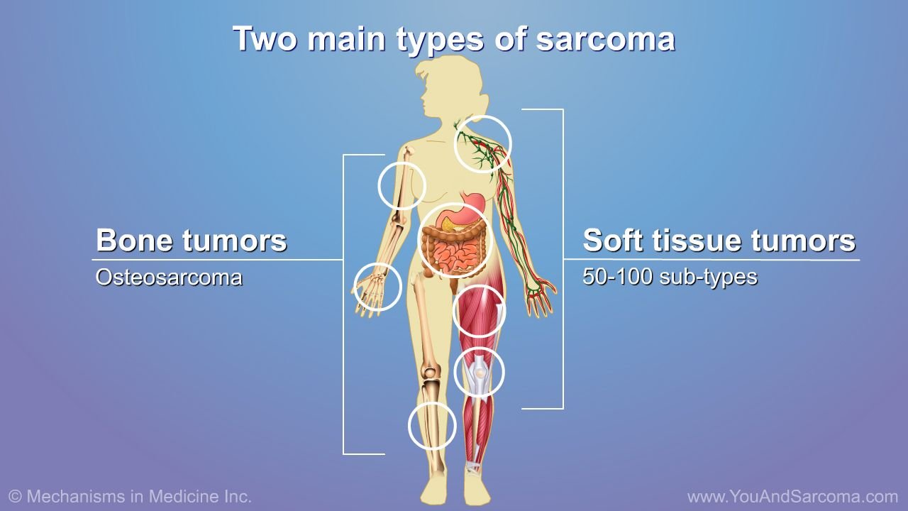 sarcoma cancer soft tissue