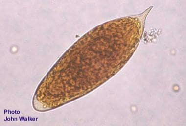 schistosomiasis medscape)