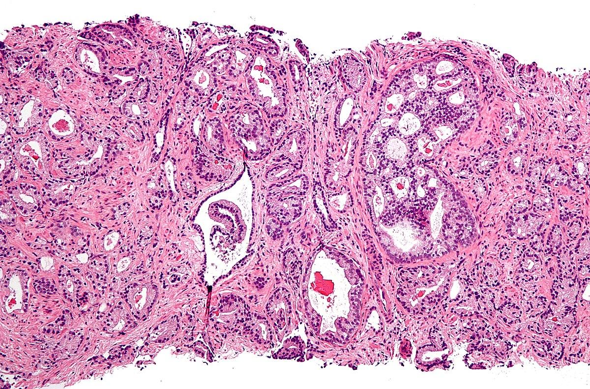 Cancer la prostata: cauze, simptome, diagnostic, tratament - anvelope-janteauto.ro