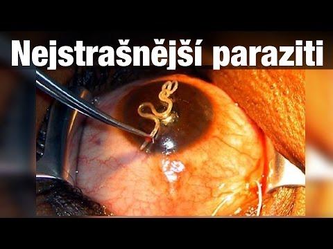 simptome de parazit uk)