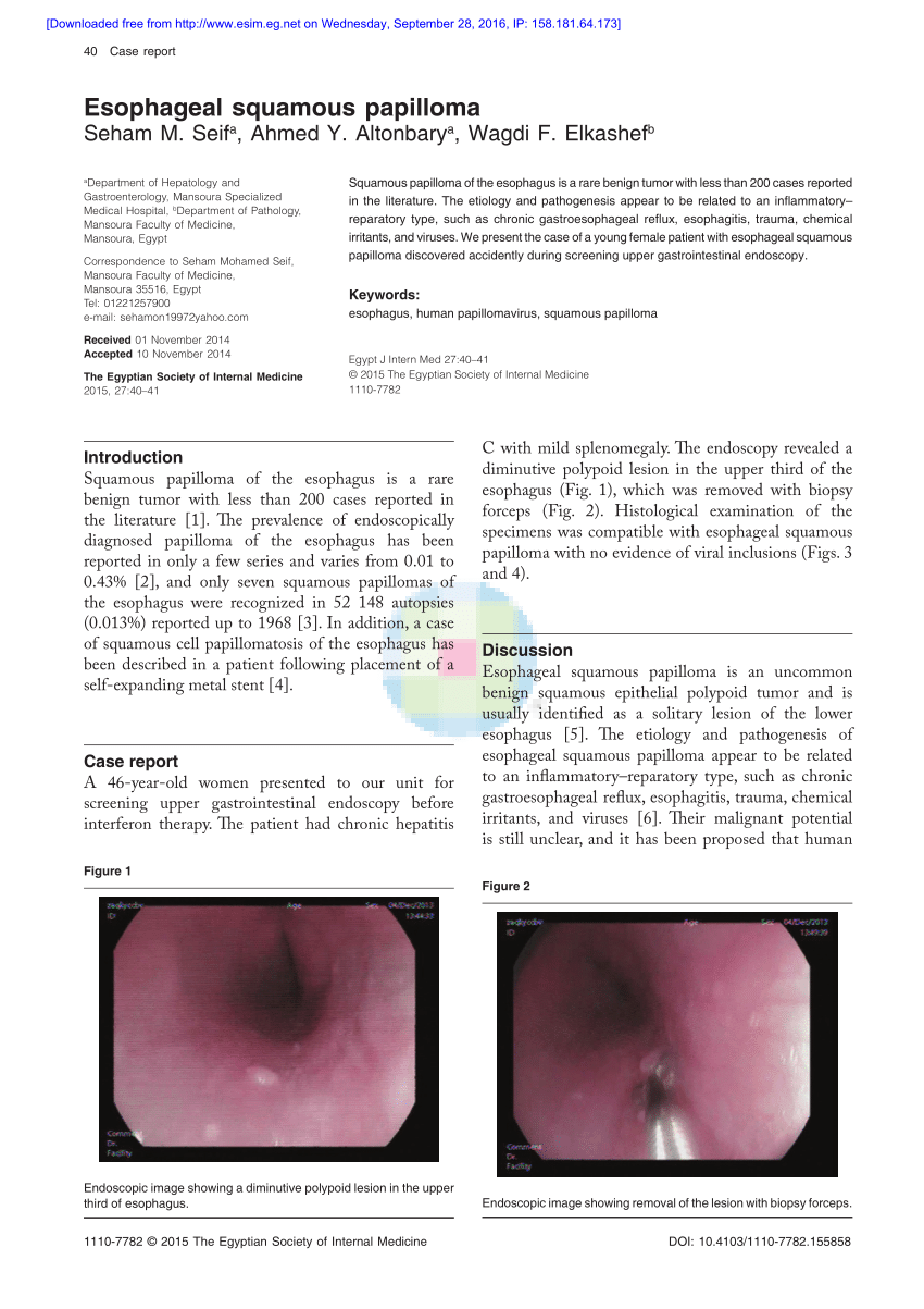 squamous papilloma esophagus hpv)