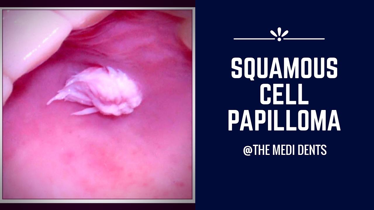 squamous papilloma nedir