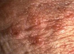 standarde de tratament a verucilor genitale