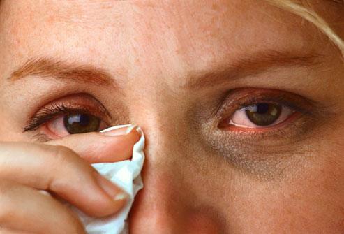umflarea mâncărimii nasului)