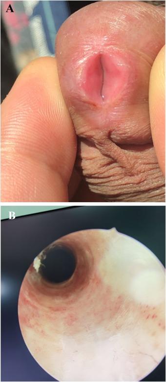 Eliminare laser a verucilor genitali si condiloamelor