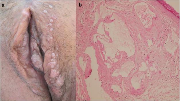 vestibular papillomatosis prevalence)