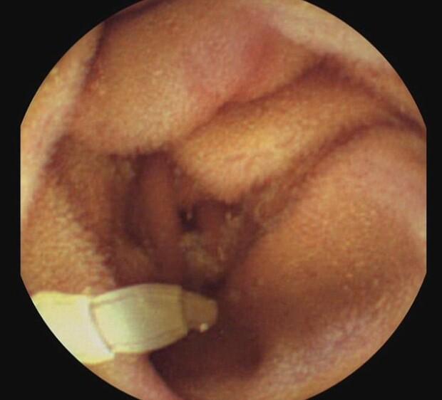 paraziți în stomatologie pediatrică viermii ies în scaune