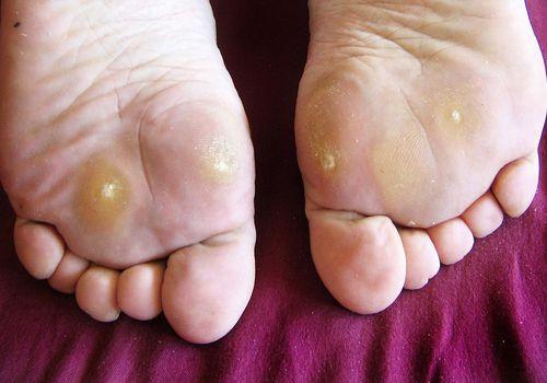 wart foot pain)