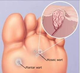 wart on foot arch)