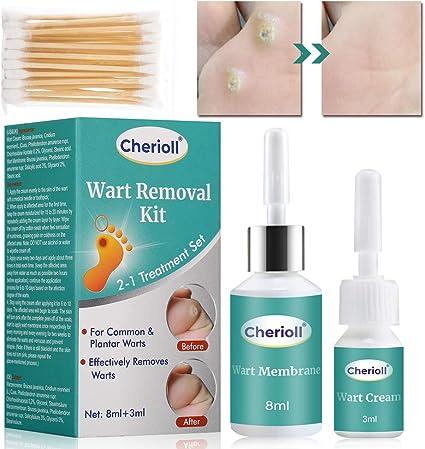 wart treatment kit)